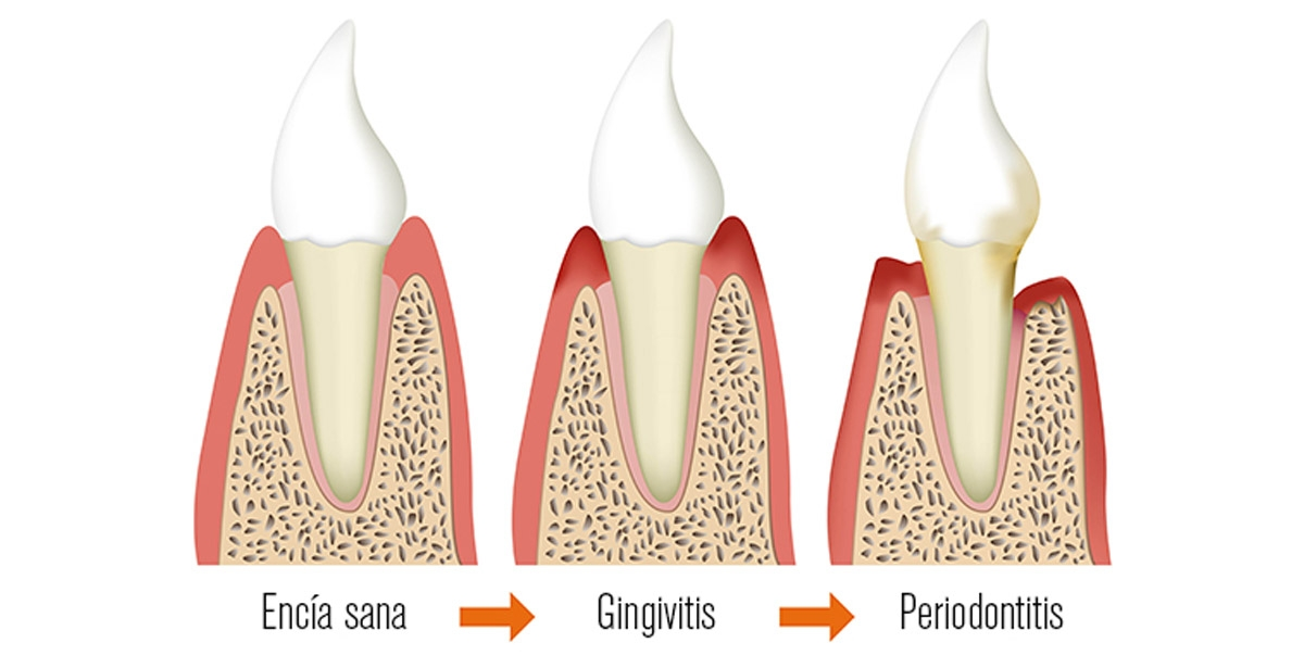 Gingivitis y Enfermedad Periodontal Whiteline Mérida Blog Dental